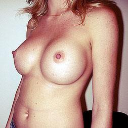 23 éves hölgy mellplasztikai műtétje